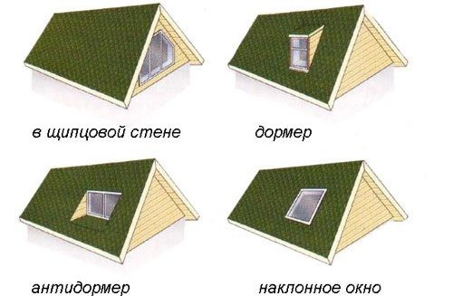 Классификация слуховых окон по форме
